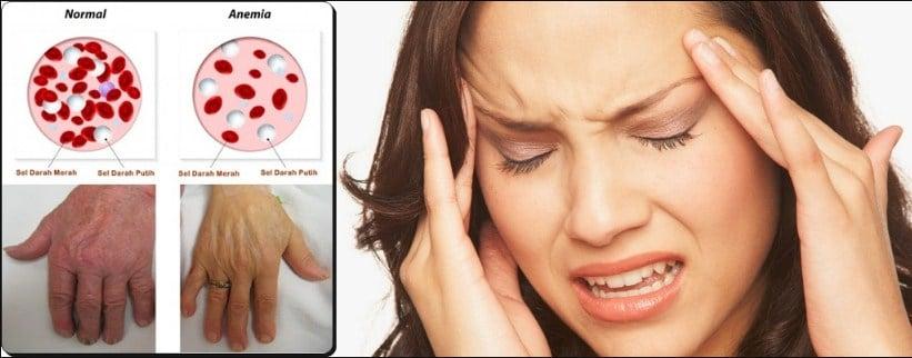 Cara Mengobati Anemia Secara Alami Dengan Pijat Refleksi ...