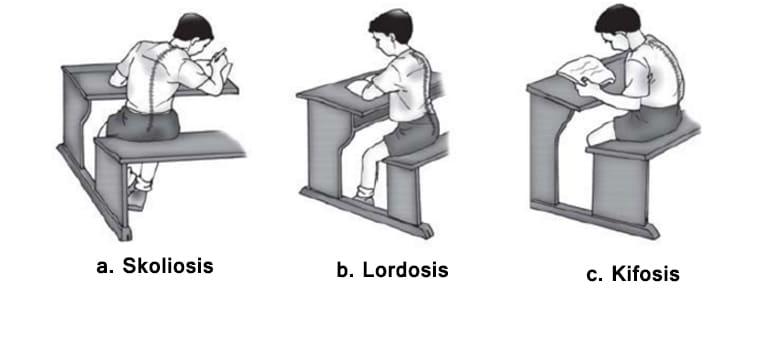 gangguan pada tulang belakang