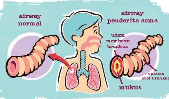 asma-animasi